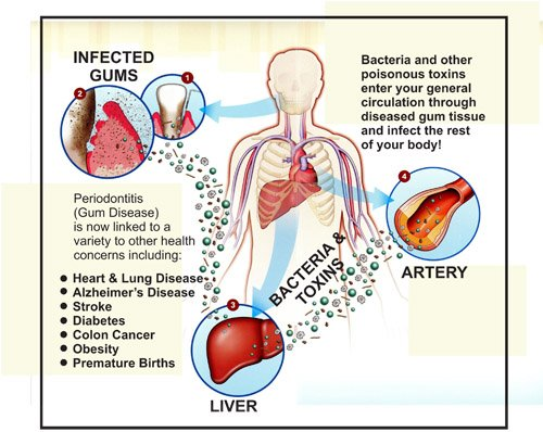 gums and heart disease diagram