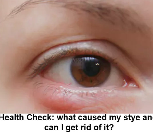 Health Check: What Caused My Stye And Can I Get Rid Of It?
