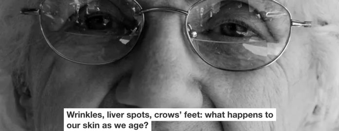 Wrinkles, Liver Spots, Crows' Feet: What Happens To Our Skin As We Age?