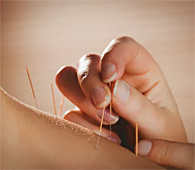 Acupuncture During Ivf Doesn't Increase Chances Of Having A Baby