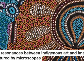 The resonances between Indigenous art and images captured by microscopes Header