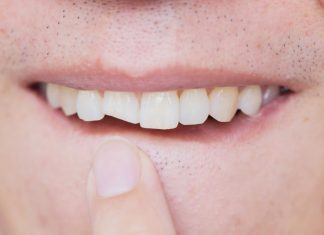 what are my options after breaking a tooth?
