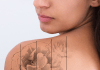 tattoos increasing in popularity along with demand to have them removed