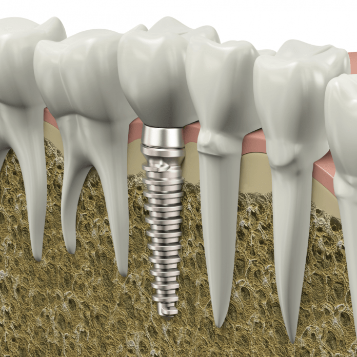how dental implants replace a missing tooth