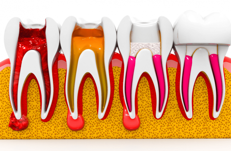 5 signs that tell you need root canal therapy